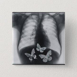 胃の蝶のX線 5.1CM 正方形バッジ