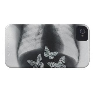 胃の蝶のX線 Case-Mate iPhone 4 ケース