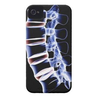 腰神経椎骨2 Case-Mate iPhone 4 ケース