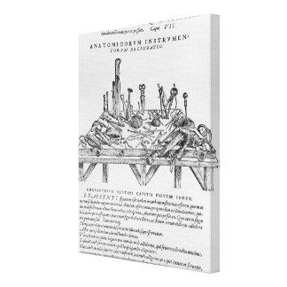 解剖、「Deからのイラストレーションのための楽器 キャンバスプリント