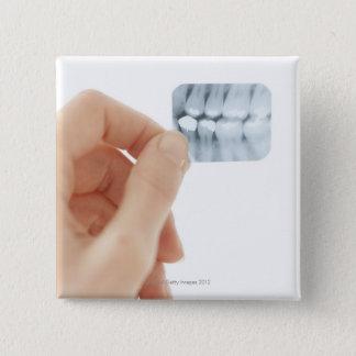 解放されるモデル。 歯科X線 5.1CM 正方形バッジ