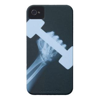 重量、クローズアップが付いている人間手のイメージのX線撮影をして下さい Case-Mate iPhone 4 ケース
