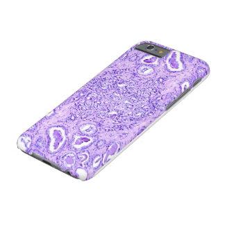 電話箱(多くのモデル) -前立腺癌の細胞 iPhone 6 ベアリーゼアケース