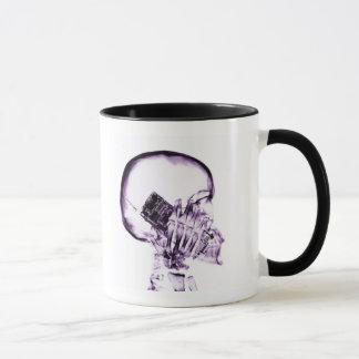 電話-紫色のX線の骨組 マグカップ