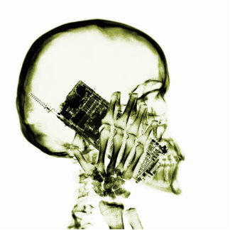 電話-黄色のX線の骨組 写真彫刻(台付き)