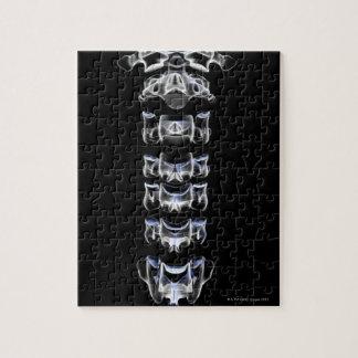 頚部椎骨4 ジグソーパズル
