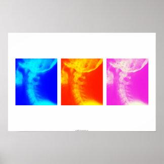 頚部X線のカイロプラクティックポスター2 ポスター
