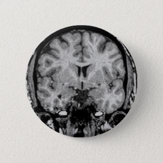 頭脳MRIのコロナの切れ 缶バッジ