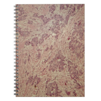 顕微鏡の下の乳癌 ノートブック