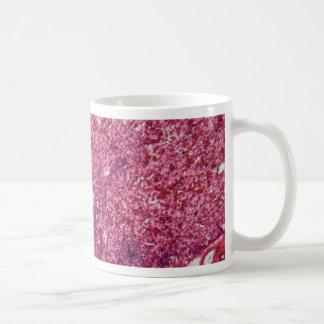 顕微鏡の下の癌が付いている人間のレバー細胞 コーヒーマグカップ