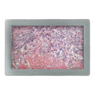 顕微鏡の下の皮膚癌が付いている人間の皮 長方形ベルトバックル