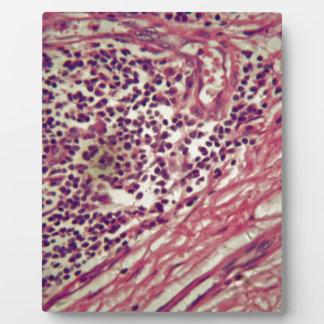 顕微鏡の下の胃癌の細胞 フォトプラーク