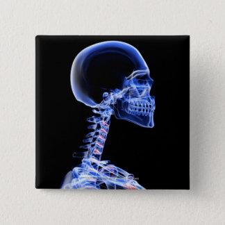首の骨のX線 5.1CM 正方形バッジ