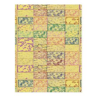 黄色い輝きの陰KOOLshades ポストカード
