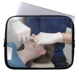 aの歯科支柱を再調整している歯科矯正医 ラップトップスリーブ