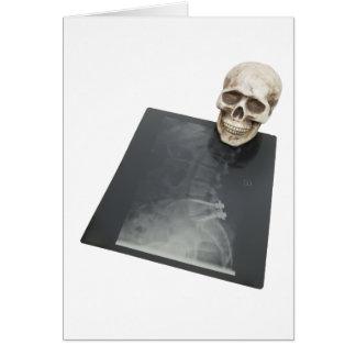 BonesXray061209 カード