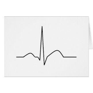 ECG - synusのリズム カード