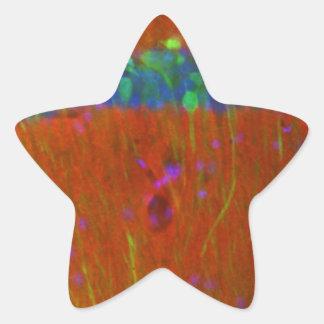 Hippocampalニューロン4 星シール