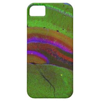 Hippocampalニューロン iPhone SE/5/5s ケース