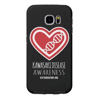 KDの電話箱(穹窖の堅いSamsungの銀河系S6) Samsung Galaxy S6 ケース
