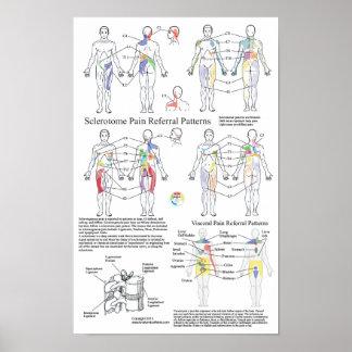 Sclerotomeの内臓の苦痛の紹介の図表 ポスター