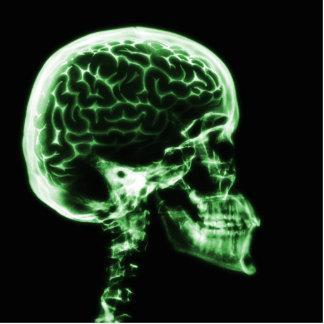 X線のスカルの頭脳-緑 写真彫刻(台付き)