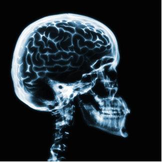 X線のスカルの頭脳-青 写真彫刻(台付き)