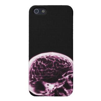 X線のスカルの頭脳-黒及びピンク iPhone SE/5/5sケース