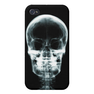 X線の視野の骨組スカル-オリジナル iPhone 4/4Sケース
