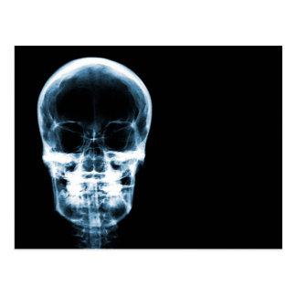 X線の視野の骨組スカル-青 ポストカード