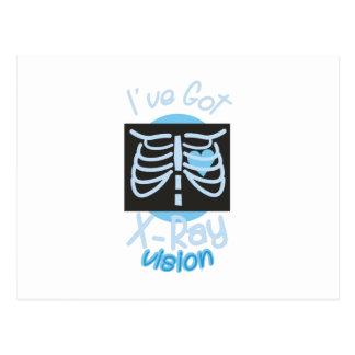 X線の視野 ポストカード