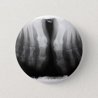 X線の足の人間の骨組骨炭及び白 5.7CM 丸型バッジ