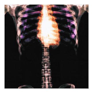 X線の骨組胴の肋骨-オリジナル 13.3 スクエアインビテーションカード