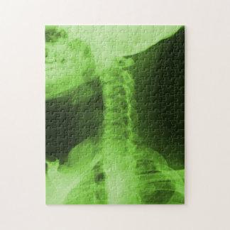X線撮影をされた2放射性緑 ジグソーパズル
