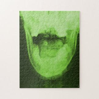 X線撮影をされた3つ-放射性緑 ジグソーパズル