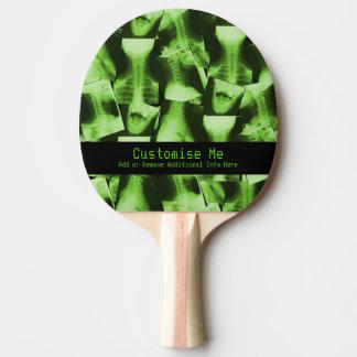 X線撮影をされる-放射性緑 卓球ラケット