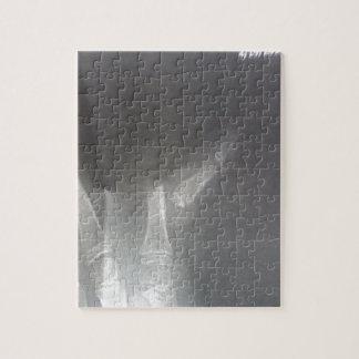 X線 ジグソーパズル